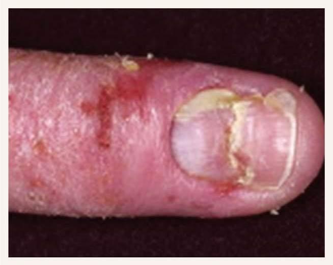 Onihodistrofija  dermatologu praksē