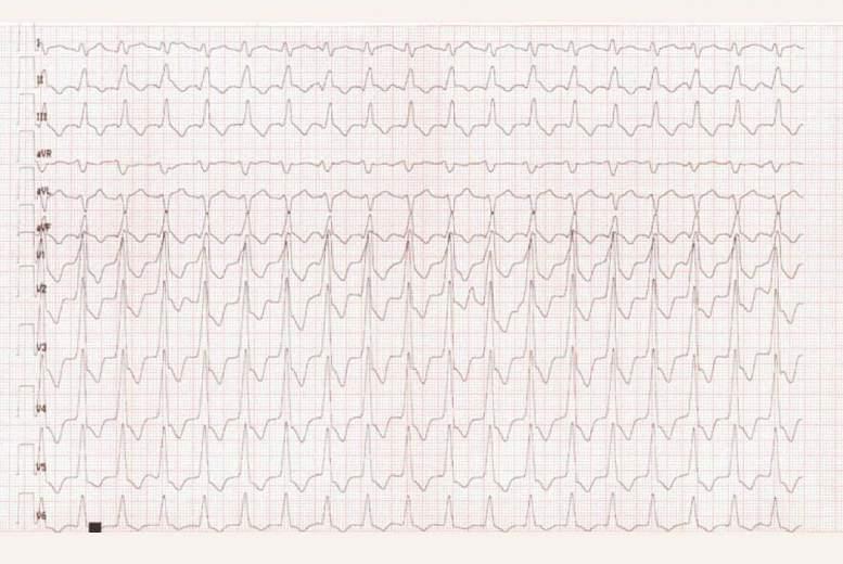 Kambaru tahikardija kā miokarda infarkta vēlīnas sekas