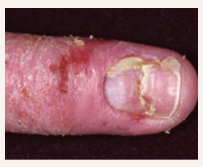 Pacients ar atopisku plaukstu un onihodistrofiju