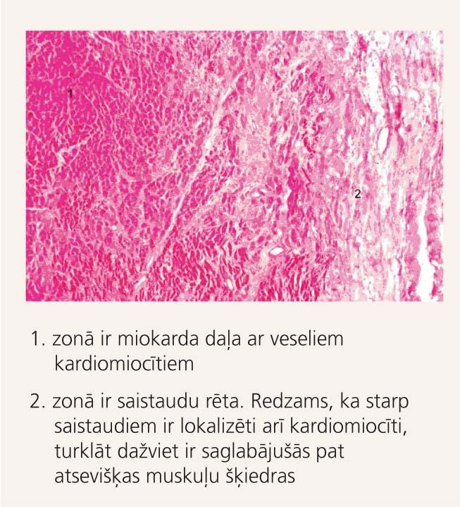 """Mikropreparāts no sadzijuša (""""izdziedināta"""") miokarda"""