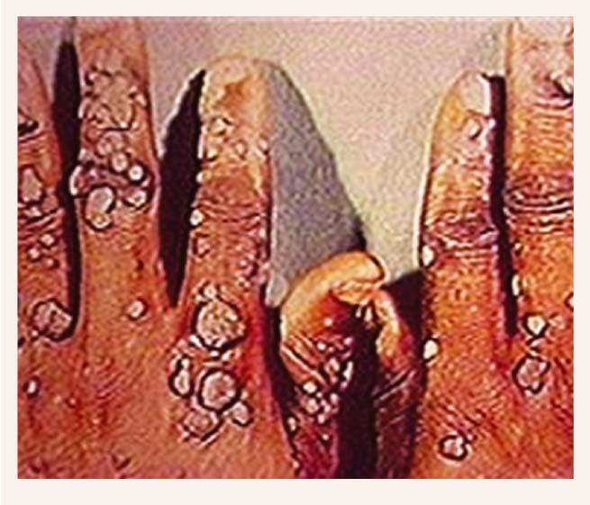 Pacients ar palmārām kārpām