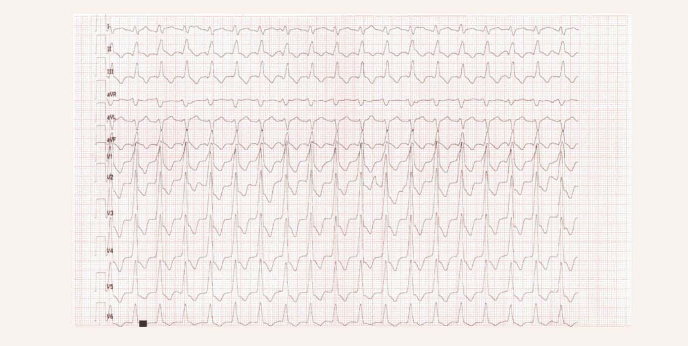 """Relatīvi """"lēna"""" kambaru tahikardija ar frekvenci 112 x' pacientam 2 gadus pēc pārciesta akūta bez q MI kreisā kambara mugurējā sienā"""
