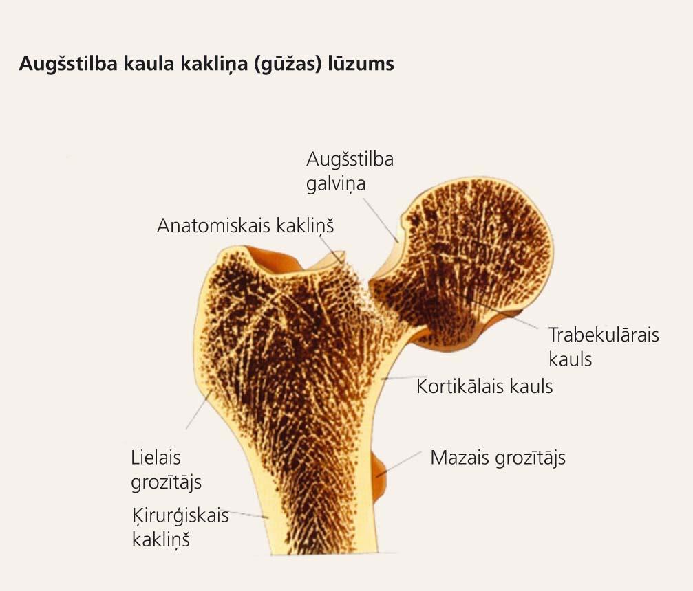 Osteoporotiskie kaulu lūzumi