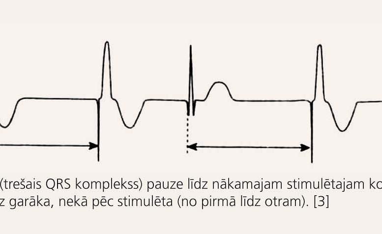Elektro-kardiostimulācija
