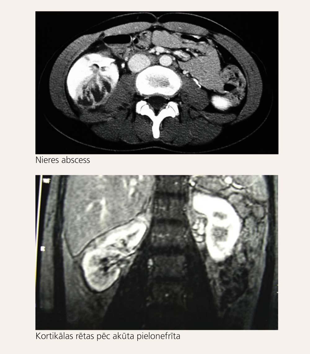 Datortomogrāfija akūta pielonefrīta diagnostikā