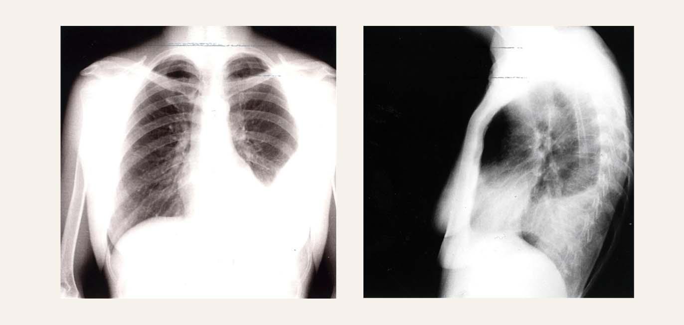 Konvencionāla krūškurvja rentgenogramma AP un LL projekcijā pacientei ar  kreisās puses pleirītu ar tipisku pleiras šķidruma lokalizāciju