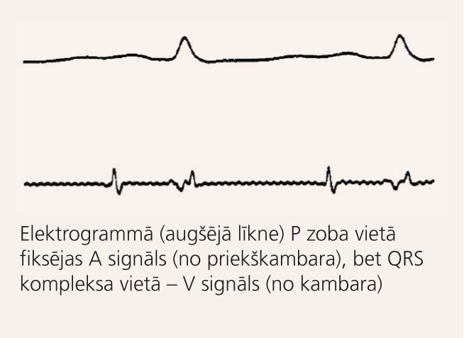 Elektrogrammas un elektrokardiogrammas salīdzinājums