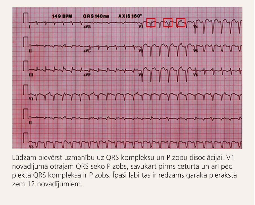 12 novadījumu elektrokardiogramma pacientam  ar kambaru tahikardiju