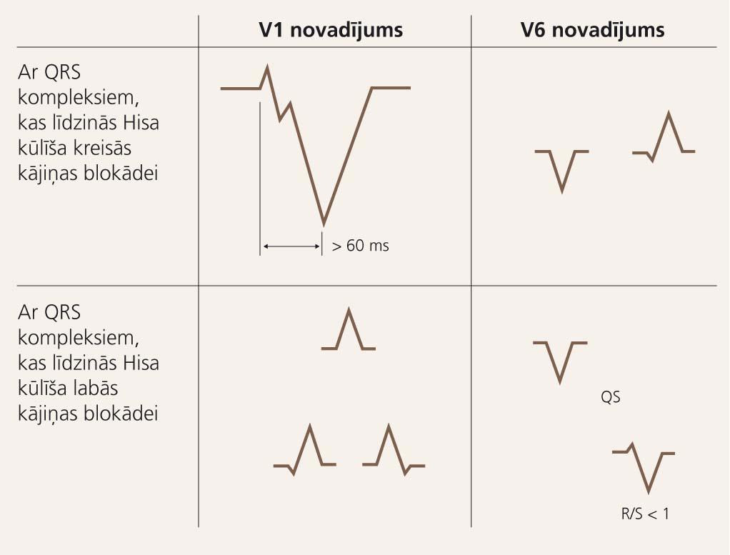 Pazīmes elektrokardiogrammas krūšu novadījumos,  kas var liecināt par to, ka platu QRS kompleksu tahikardija ir kambaru tahikardija