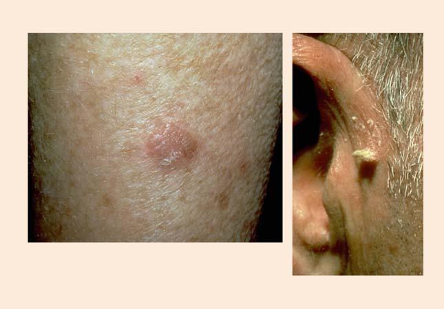 Aktīniskā keratoze un ādas rags