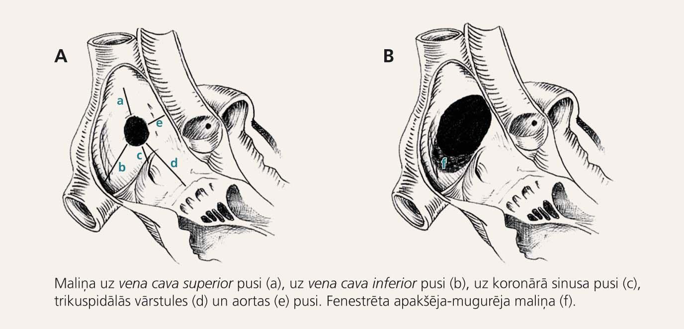 Ātriju starpsienas defekts ar optimālu (A) un suboptimālu (B) anatomisko variantu perkutānai slēgšanai [8]