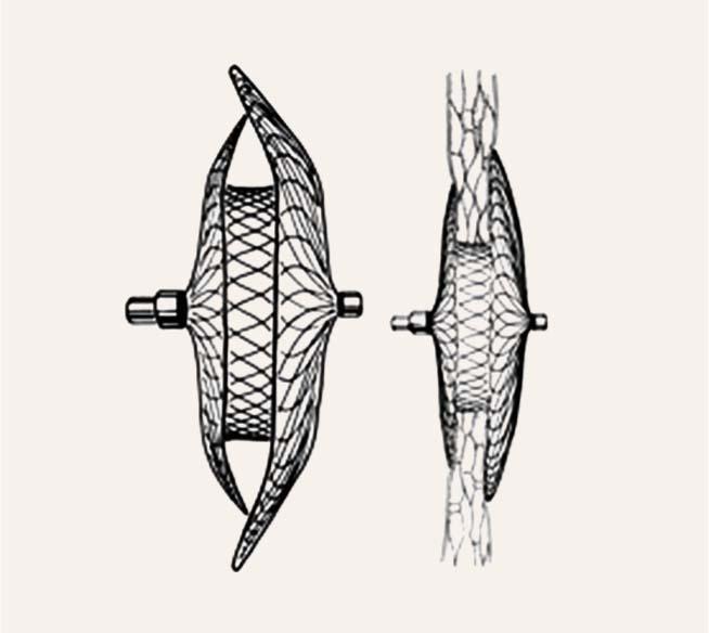 Shematisks ASD Amplatzer oklūdera attēls –  atvērtā veidā (A) un pēc novietošanas priekškambaru starpsienas līmenī (B)