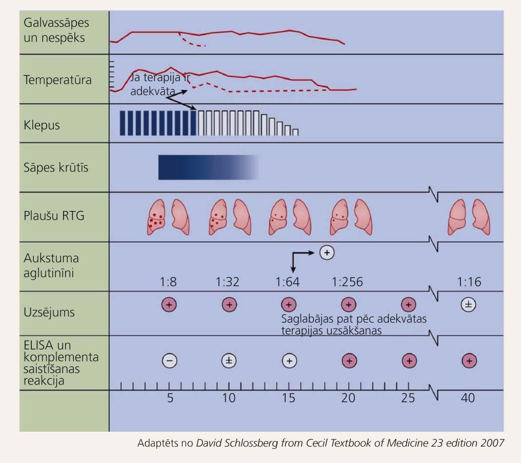 Walking pneumonia: norise, izpausmes, diagnostika un terapijas ietekme uz tās norisi