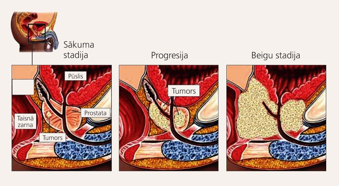 Prostatas vēža attīstība