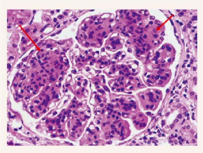 Membranoproliferatīvs glomerulonefrīts ar akūtu  tubulāru bojājumu
