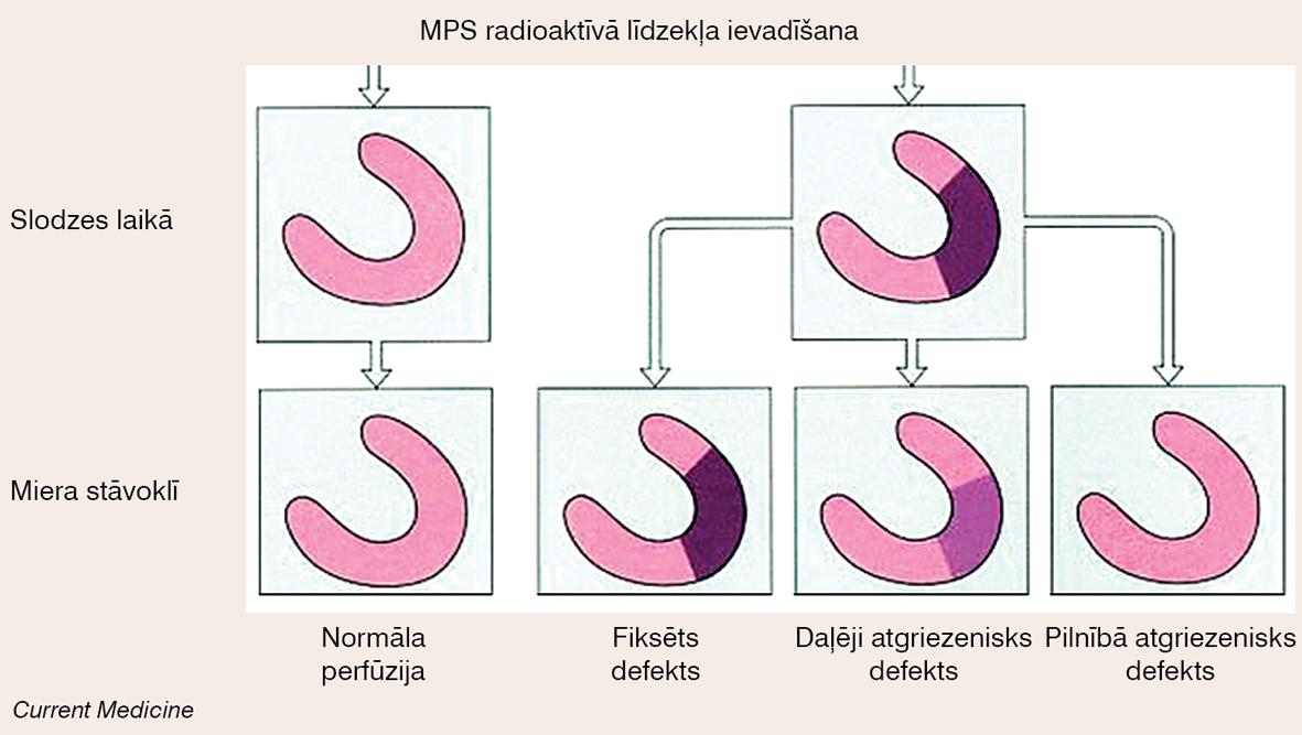 Miokarda perfūzijas defekta novērtēšana