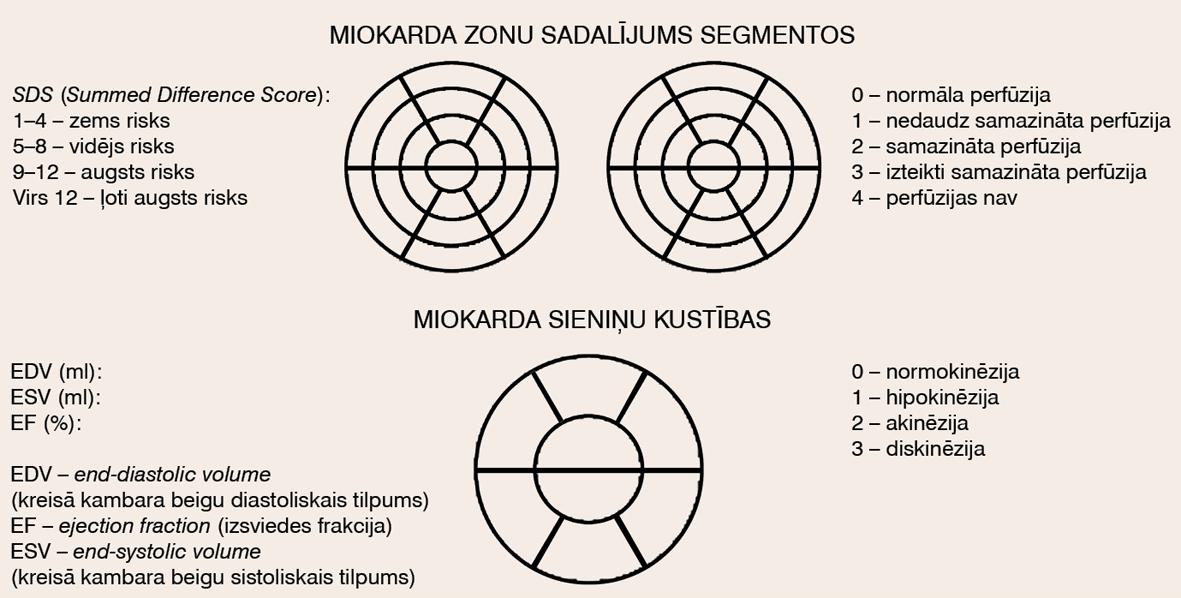 Miokarda perfūzijas scintigrāfijas rezultātu apkopojums