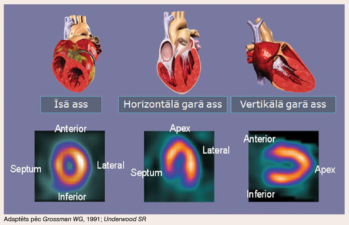 MPS vizualizācijas attēls atbilstīgi sirds anatomijai. MPS plaknes
