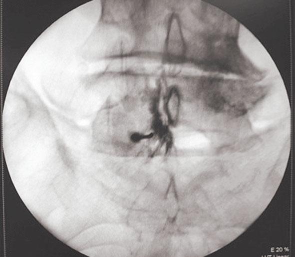 Kontrasta izplatīšanās  epidurālajā telpā