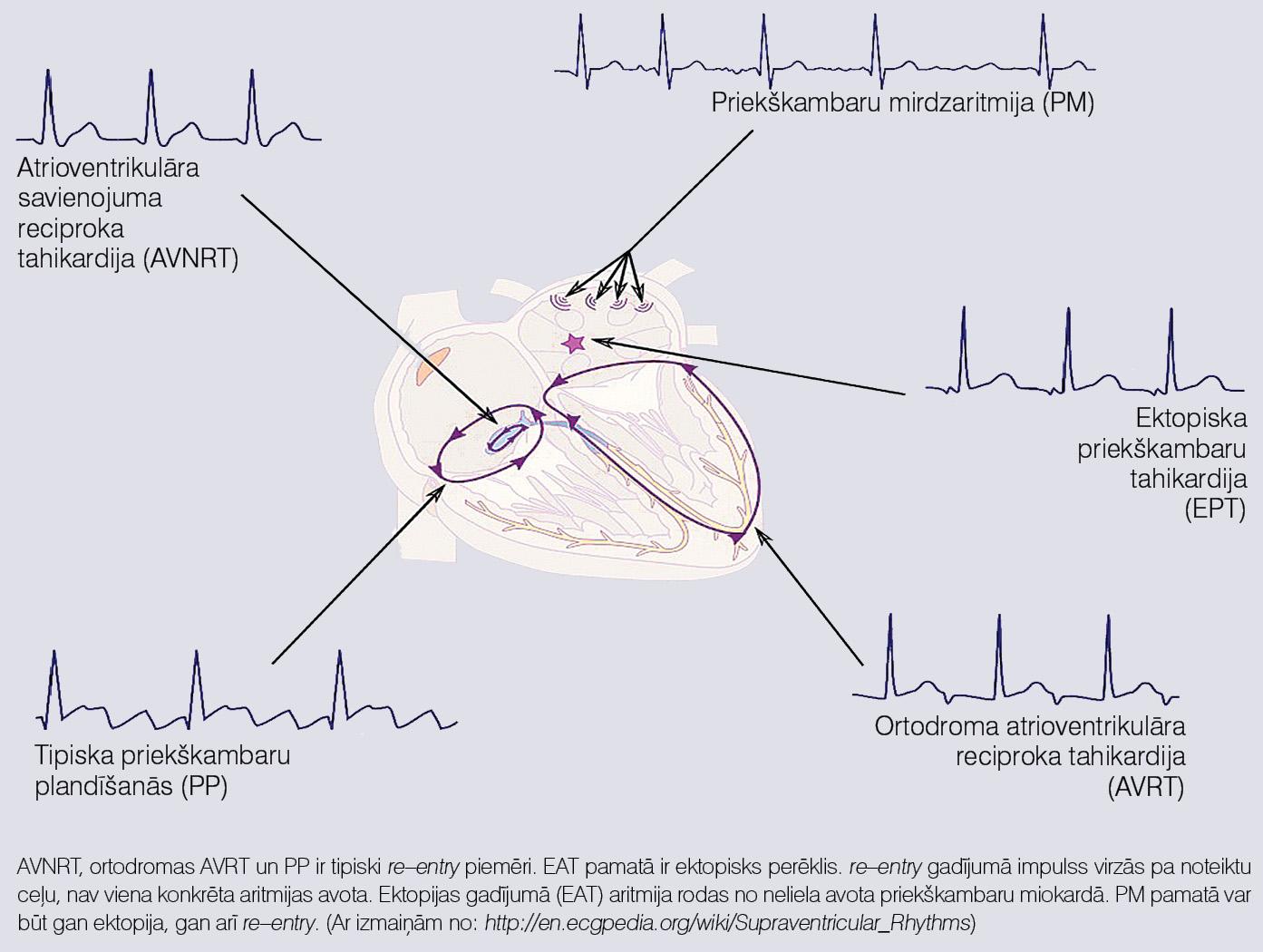 Ektopiska un re–entry mehānismu salīdzinājums uz šauru QRS kompleksu tahikardiju piemēra