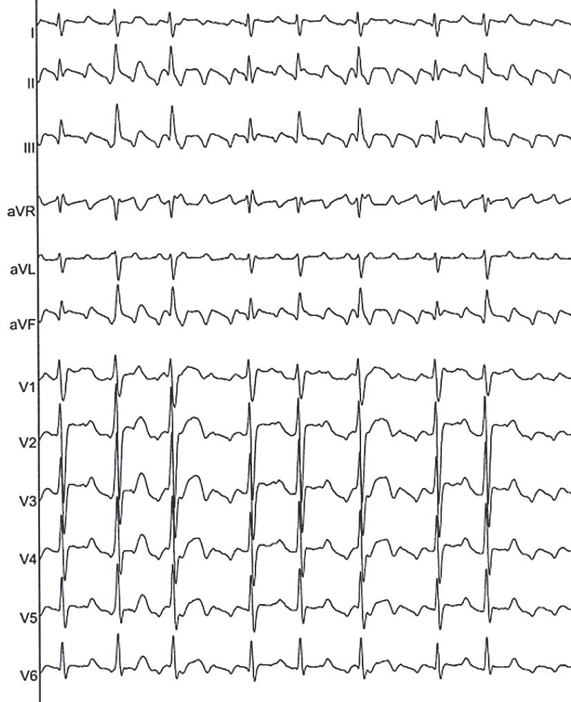 Tipiska elektrokardiogrāfiska aina  pacientam ar priekškambaru  plandīšanos ar mainīgu pārvades  koeficientu 2:1—4:1