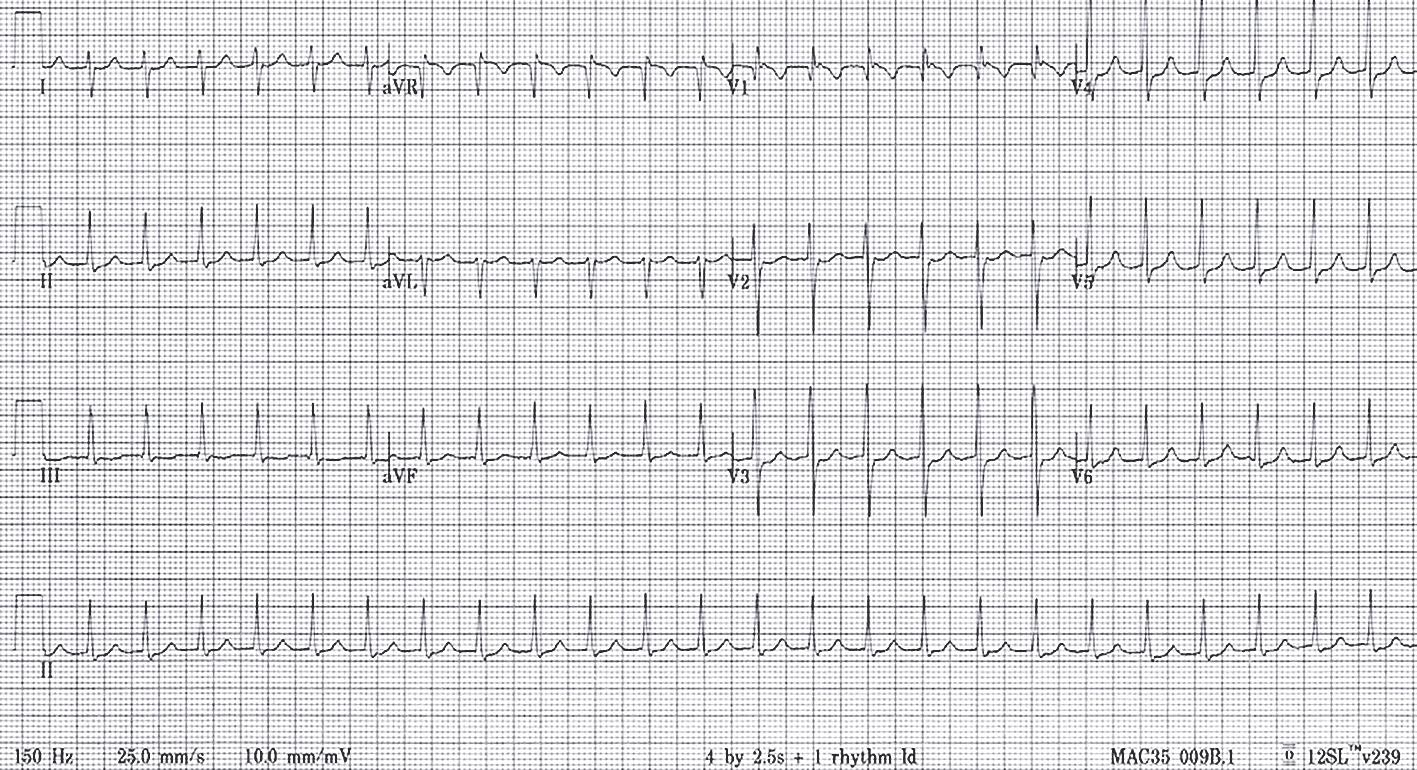 Elektrokardiogramma pacientam ar atrioventrikulārā savienojuma atgriezenisku tahikardiju