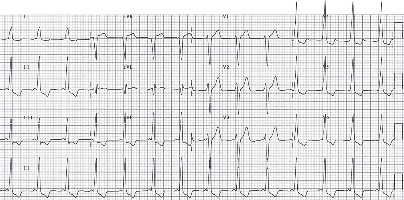 Elektrokardiogramma pacientam ar WPW sindromu