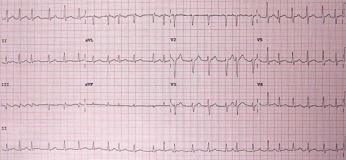 12 novadījumu EKG pacientiem ar priekškambaru mirdzaritmiju.  Ievērojiet neregulāros R–R intervālus un P viļņu iztrūkumu