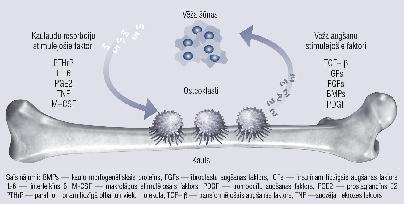 Circulus vitiosus vēža ierosinātā kaulu bojājuma gadījumā. Citokīni un augšanas faktori,  kas izdalās kaulaudu resorbcijas rezultātā, uztur vēža procesu [3 ]