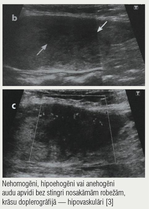 Ultrasonogrāfija,  subakūts tireoidīts