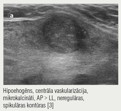 Ultrasonogrāfija — malignitāte