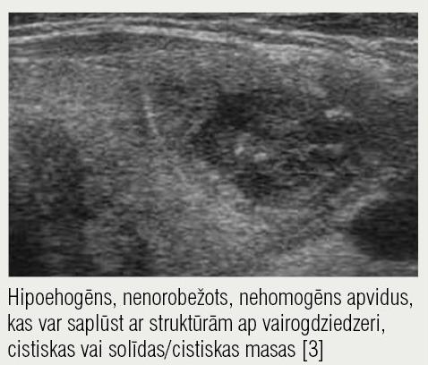 Ultrasonogrāfija,  akūts tireoidīts