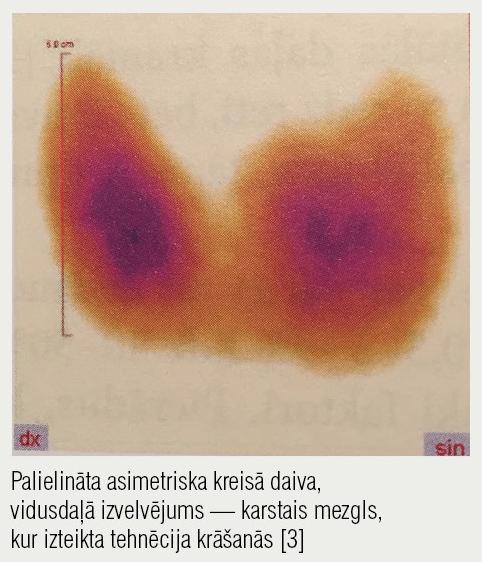 Vairogdziedzera scintigrāfija — Greivsa slimība