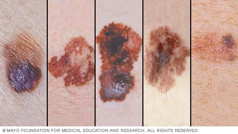 Neārstēta miega apnoja saistīta ar melanomas agresivitāti