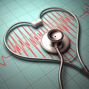 Sievietēm ar ātriju fibrilāciju par 23% lielāks insulta risks!