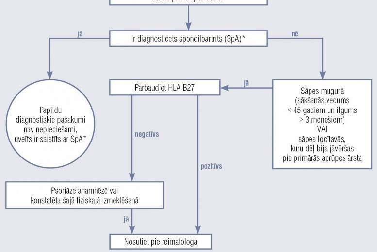 Spondiloartrīta diagnostika pacientiem ar uveītu