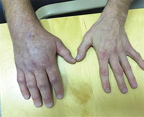 Pacients trīs mēnešus  pēc plaukstas traumas