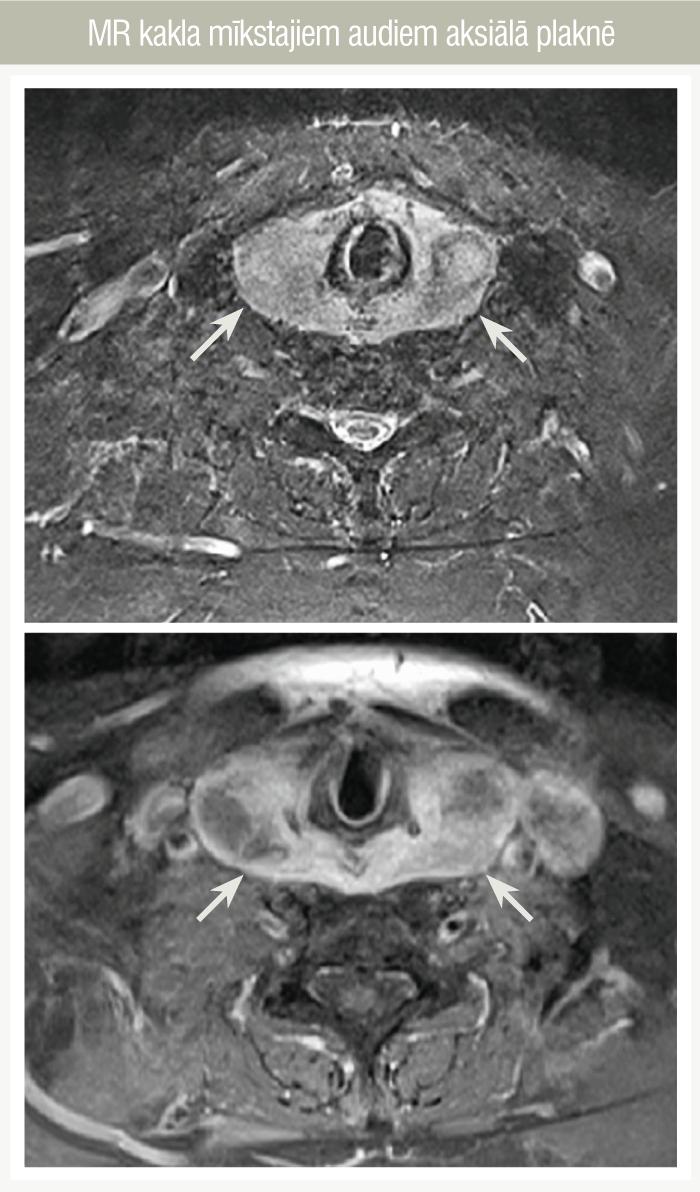 MR kakla mīkstajiem audiem aksiālā plaknē