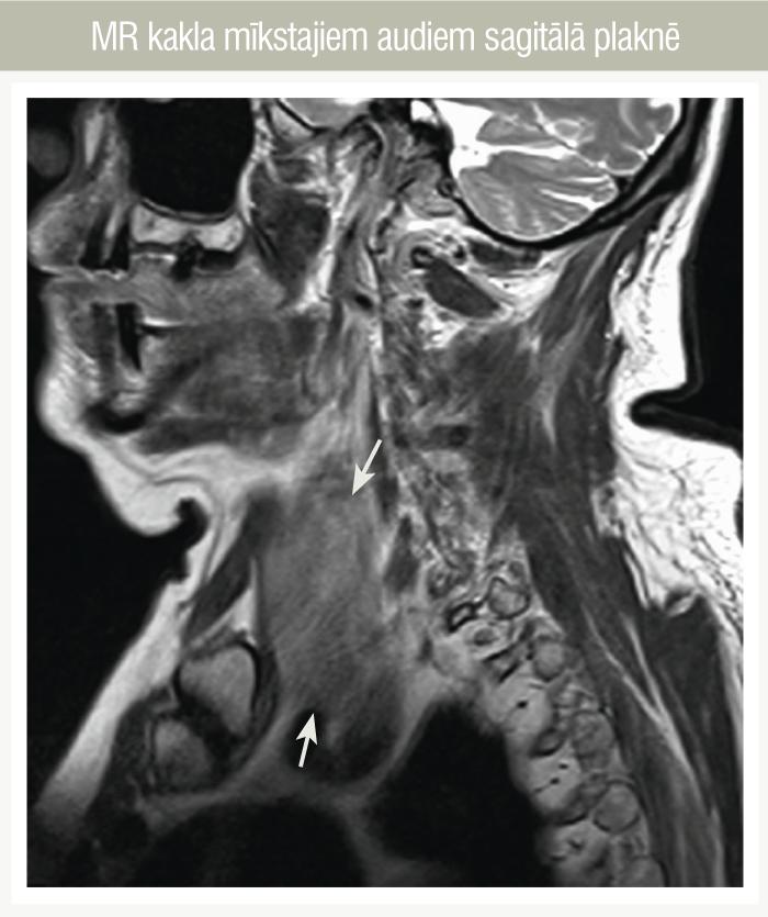 MR kakla mīkstajiem audiem sagitālā plaknē