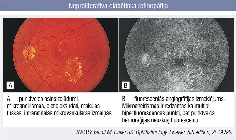 Neproliferatīva diabētiska retinopātijav