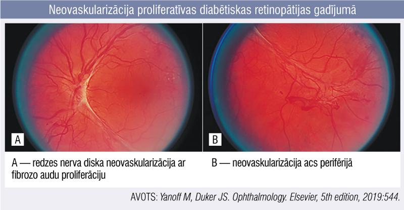 Neovaskularizācija proliferatīvas diabētiskas retinopātijas gadījumā