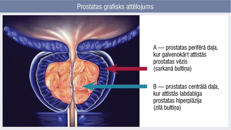 Prostatas grafisks attēlojums