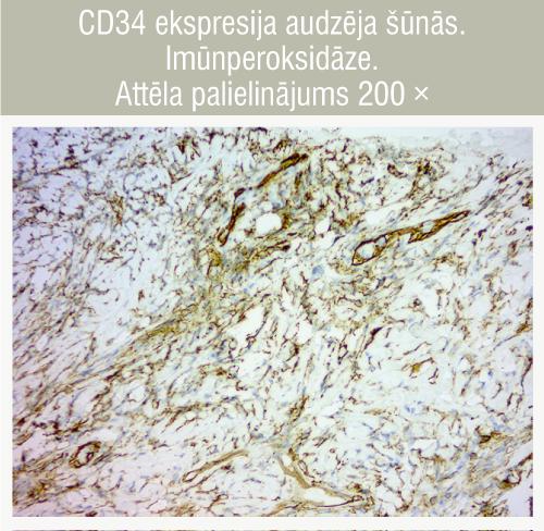 CD34 ekspresija audzēja šūnās. Imūnperoksidāze. Attēla palielinājums 200 ×
