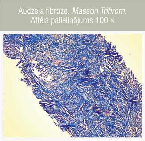 Audzēja fibroze. Masson Trihrom. Attēla palielinājums 100 ×