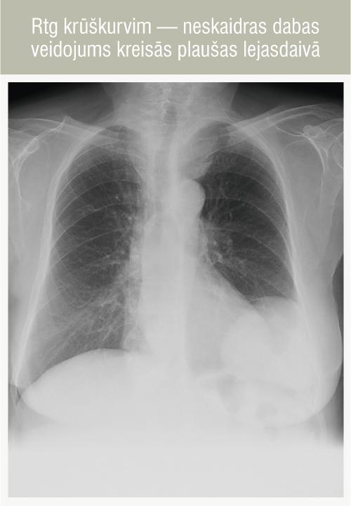 Rtg krūškurvim — neskaidras dabas veidojums kreisās plaušas lejasdaivā