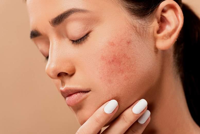 Acne vulgaris. Klīniski un psiholoģiski nozīmīga slimība