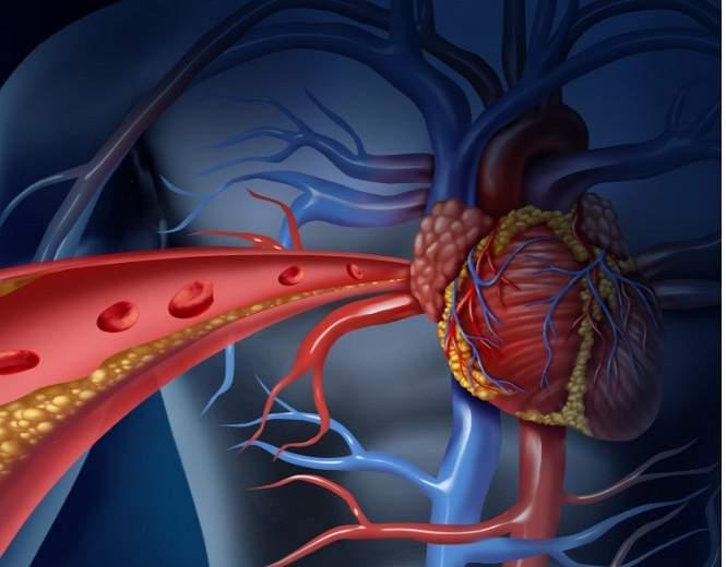 Hroniskas  sirds mazspējas pārvaldība. Komandas darba izaicinājums!