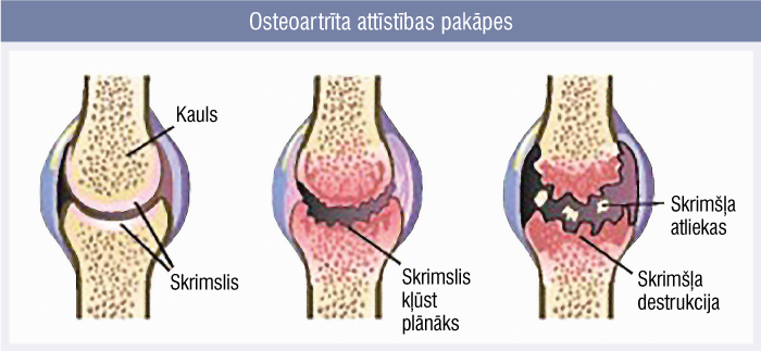 Osteoartrīta attīstības pakāpes
