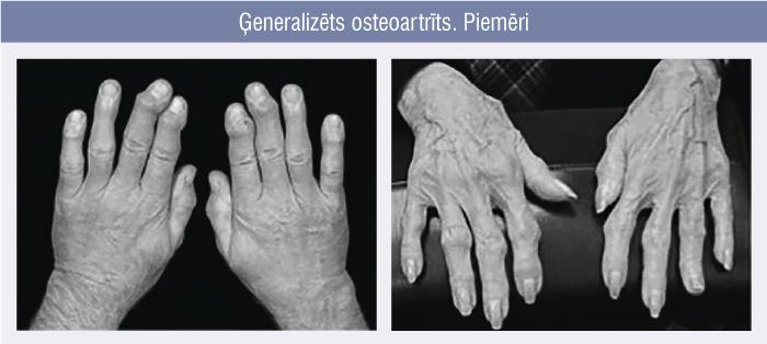 Ģeneralizēts osteoartrīts. Piemēri