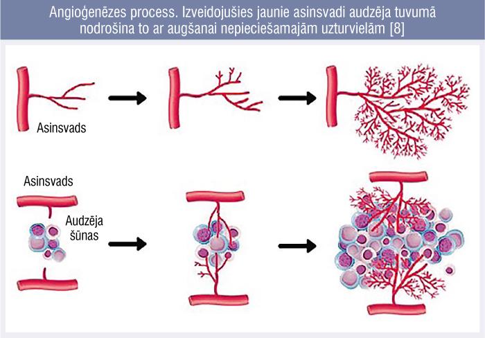 Angioģenēzes process. Izveidojušies jaunie asinsvadi audzēja tuvumā nodrošina to ar augšanai nepieciešamajām uzturvielām [8]